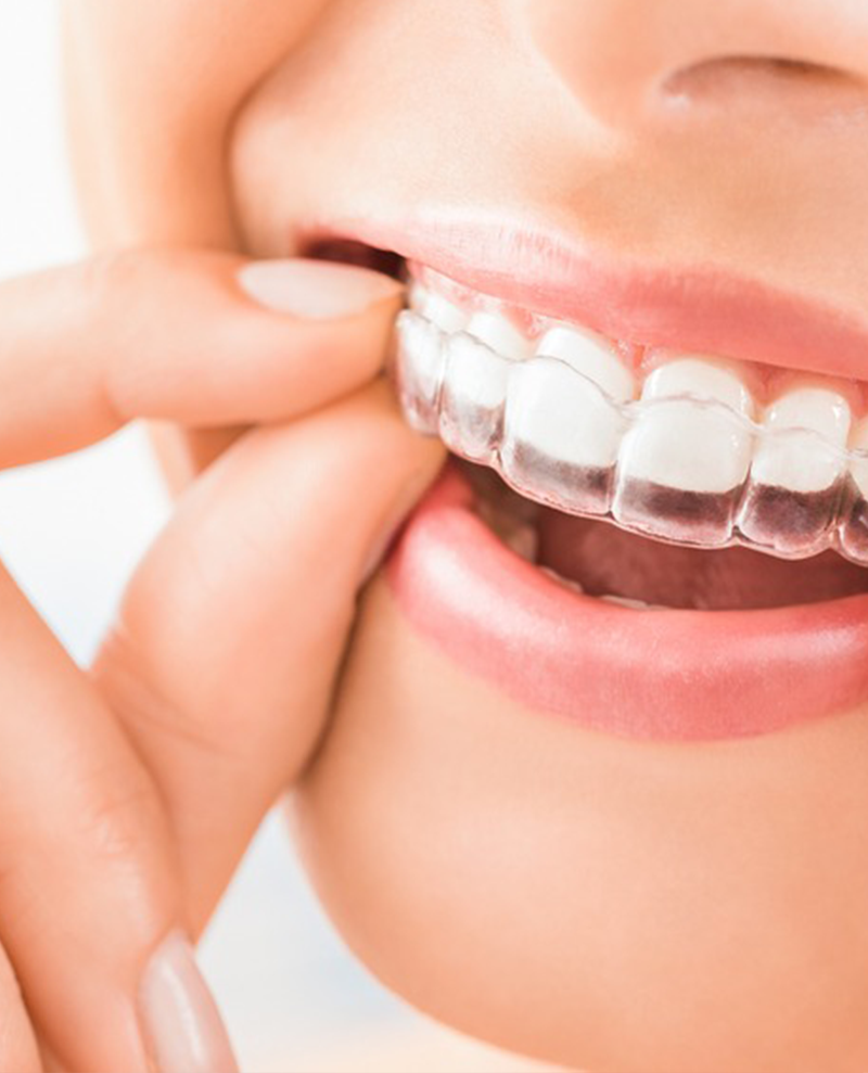 Invisalign NYC | facial aesthetic treatments in nyc