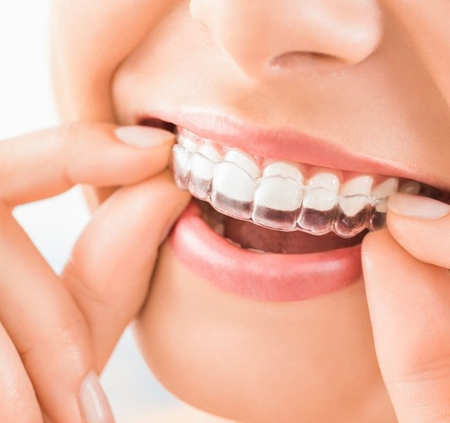 orthodontist in New York city | Invisalign dentist nyc