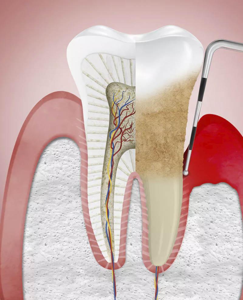 endodontics nyc