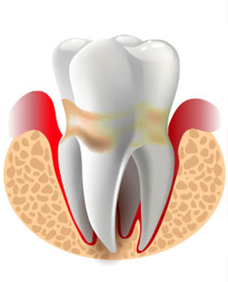 calcium and oral health | dental crown replacement nyc
