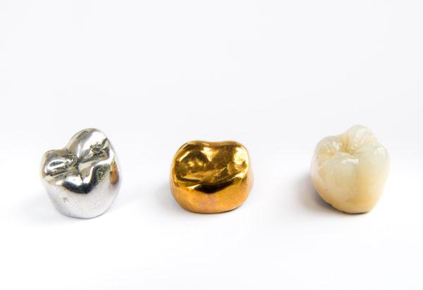 JBL New York City Dental Crowns