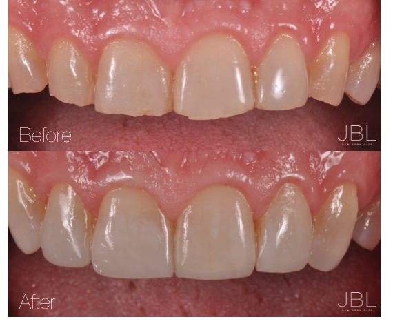 Dental Bondings NYC | JBL New York City Before and After Amile