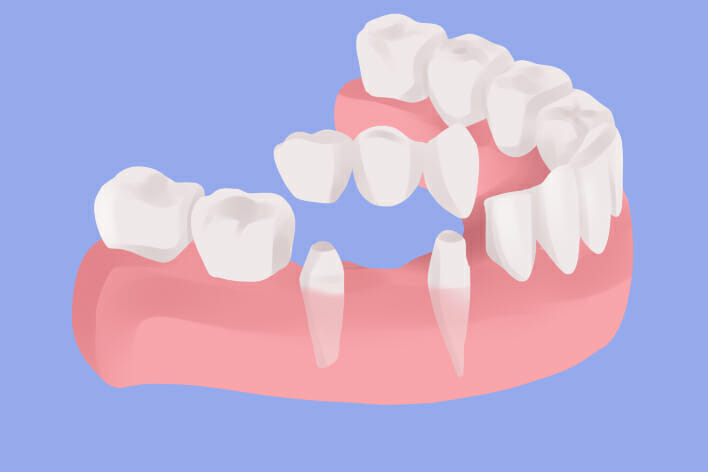 teeth replacement in nyc | JBL New York City
