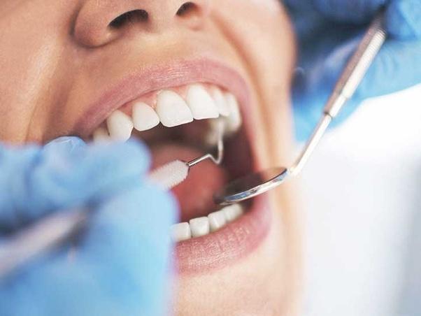 dental filling | JBL New York City Dental Filling