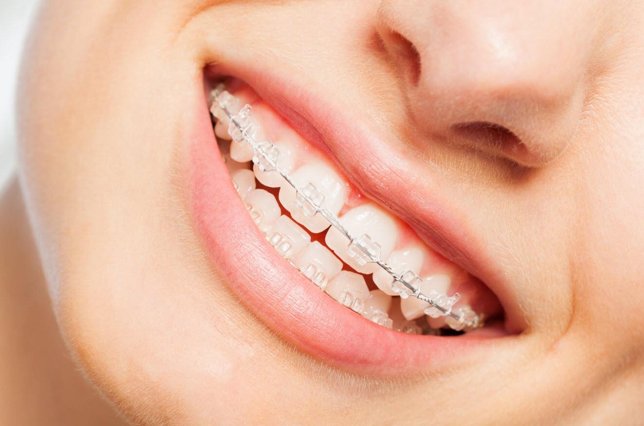 Braces for Teeth NYC